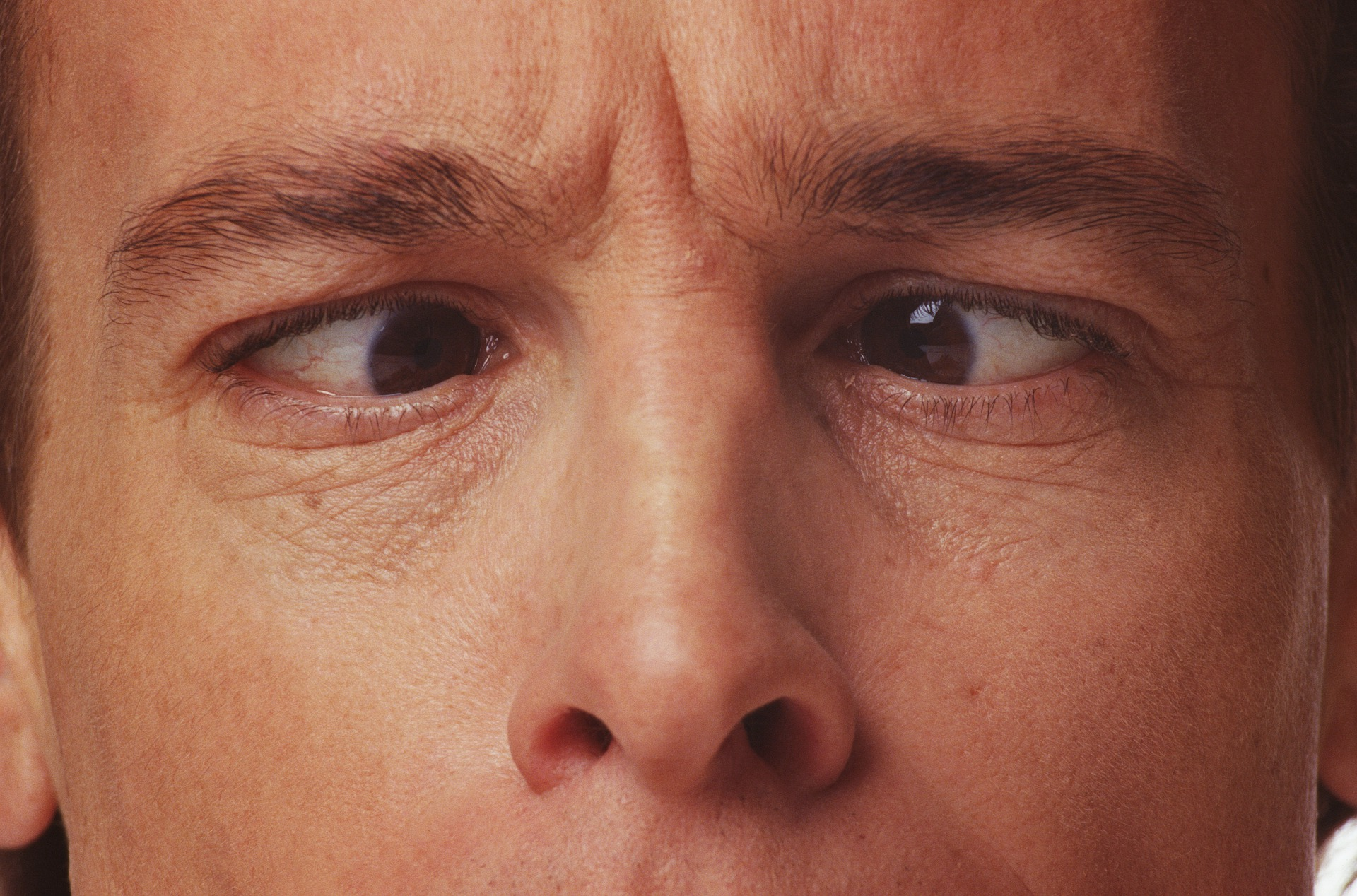 What Causes Crossed Eyes And How To Fix It